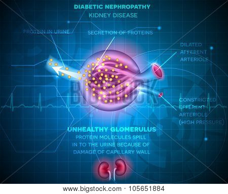 Diabetic Nephropathy, Kidney Disease