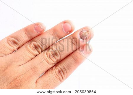 Fungus Infection on Nails Hand Finger with onychomycosis Fungal infection on nails handisolated on white background.