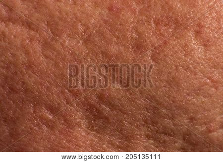 Skin With Acne Scars