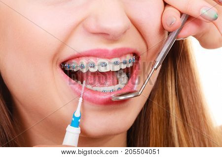 Dental health care stomatology concept. Woman with braces having dentist appointment looking at teeth with small mirror and cleaning using tiny toothbrush.