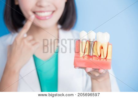 woman dentist take implant tooth and touch tooth on the blue background
