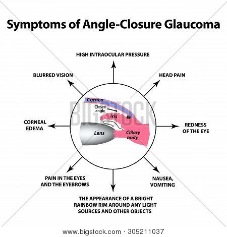 The Symptoms Of Closed Angle Glaucoma. World Glaucoma Day. The Anatomical Structure Of The Eye. Info