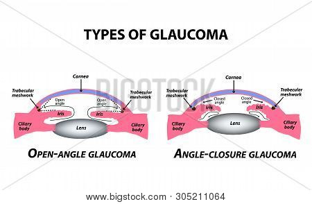 Types Of Glaucoma. Open-angle And Angle-closure Glaucoma. The Anatomical Structure Of The Eye. Infog