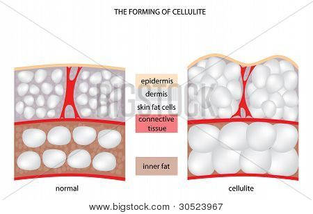 Forming Cellulite