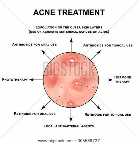 Acne Treatment. Pustules, Papules, Comedones, Blackheads, Acne On The Skin. Infographics. Vector Ill