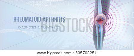 Rheumatoid Artritic Sore Joints Concept. Realistic Bones Of Knee Skeleton, Human Leg. Horizontal Lig