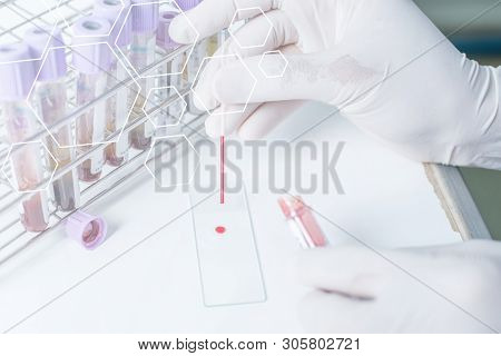 Blood Sampling With Needle For Analysis In Laboratory