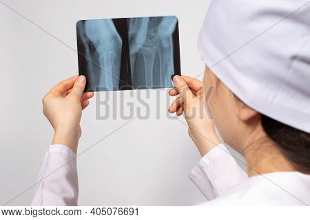A Doctor Or Radiologist Holds An X-ray Of A Person's Leg - Knee, Knee Injury. Diagnosis Of Fractures