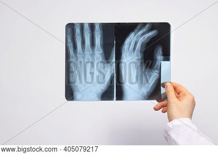 A Doctor Or Radiologist Holds An X-ray Of A Patient With A Hand Injury. Diagnosis Of Fractures, Frac