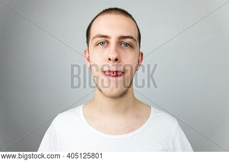 Close Up Of A Young Man, Folding His Tongue In A Rare Tri Fold, Clover Leaf Shape. Strange Genetic A