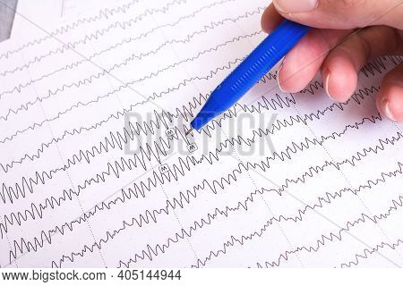 The Results Of The Electroencephalogram On Paper, Diagnostics Of Epilepsy