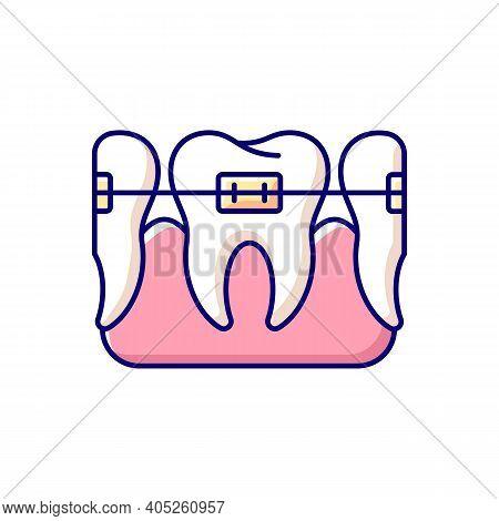 Orthodontics Rgb Color Icon. Total Orthodontics. Instruments For Dental Treatment. Professional Stom