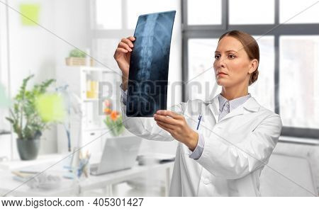 medicine, radiology and healthcare concept - female doctor in white coat with x-ray scan image of spine over medical office at hospital on background