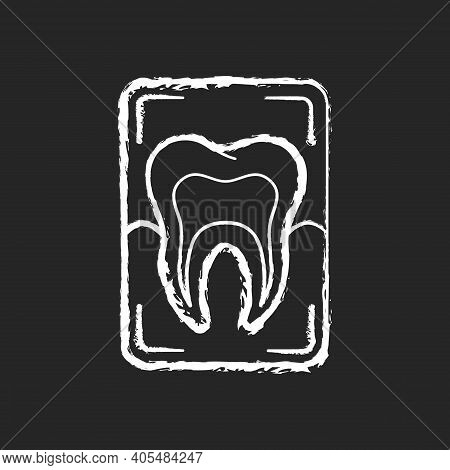 Dental X-ray Chalk White Icon On Black Background. Dental Care.dentistry Radiography. Instruments Fo