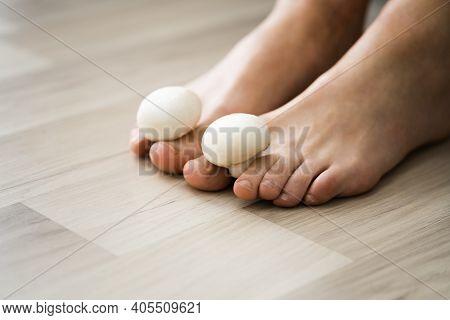 Fungus Mushroom Between Toenail. Smelly Feet And Fungi