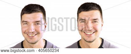 Yellow Damaged Tooth Of A Smiling Caucasian Man In Close-up. Before - After. Focus On The Teeth. Den