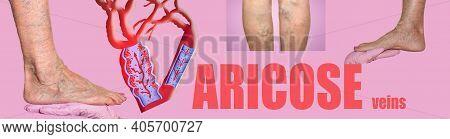 Varicose Veins On A Female Senior Legs. Concept Of Dry Skin, Old Senior People, Varicose And Deep Ve