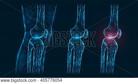Polygonal Vector Illustration Thigh And Knee Joint Side View. Disease, Pain, And Inflammation Of The