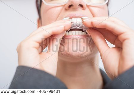 Close-up Of A Woman Putting On Transparent Plastic Retainers. The Girl Uses A Device To Straighten H