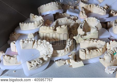 Impressions Of Teeth In The Technical Laboratory Of The Dental Clinic. A Large Number Of Casts. Impr