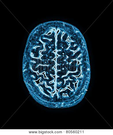 magnetic resonance image (MRI) of the brain scan poster