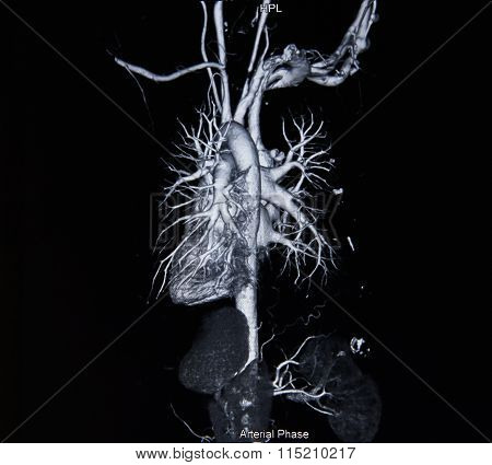 Ct Scan Angiogram (take Photo From Film X-ray)
