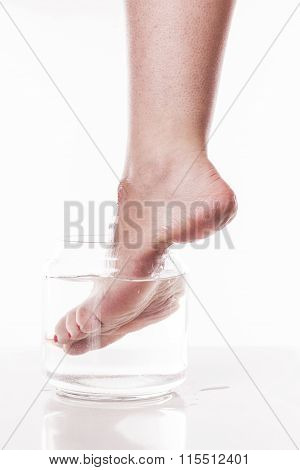 Foot Girl With A Dry And Rough Skin And Calluses On The Heel Moistened With Water From The Jar