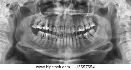 Dental Panoramic