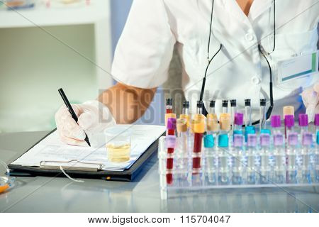 Test tube with urine sample. Laboratory assistant entered urinalysis