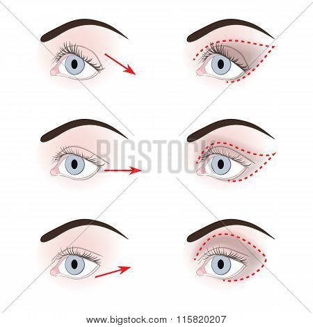 Different Shapes Of Eyelids