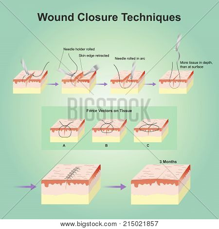 A wound is a type of injury which happens relatively quickly in which skin is torn, cut, or punctured or where blunt force trauma causes a contusion. poster
