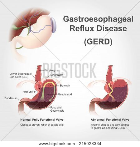 Gastroesophageal reflux disease (GERD), also known as acid reflux, is a long term condition where stomach contents come back up into the esophagus resulting in either symptoms or complications. poster
