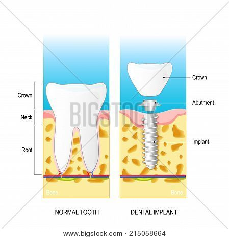 dental implant. Normal human tooth and prosthesis. Dental anatomy: root neck crown. Structure of dental implant: crown abutment and implant. Vector diagram for medical use