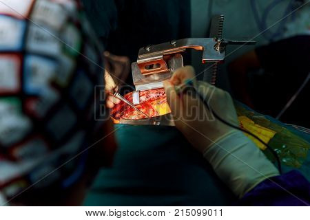 Surgeon Help Wound With Surgical Instrument During The Open Heart Operation