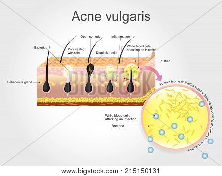 Acne vulgaris is a long-term skin disease that occurs when hair follicles become clogged with dead skin cells and oil from the skin. Acne is characterized by areas of blackheads whiteheads pimples and greasy skin and may result in scarring.