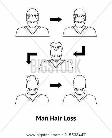 Stages of Hair Loss in Men Problem Of Alopecia Card Poster Style Design. Vector illustration