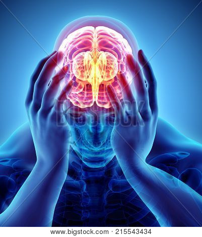 3D Illustration Of Headache Human.