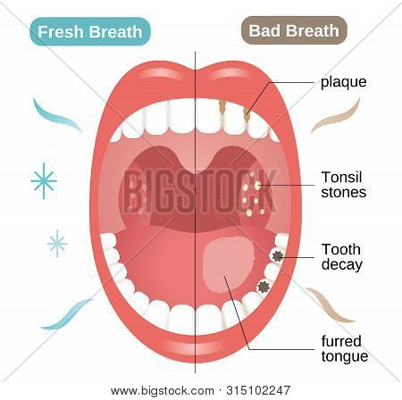 Bad And Fresh Breath Before And After Illustration. Oral Care Concept