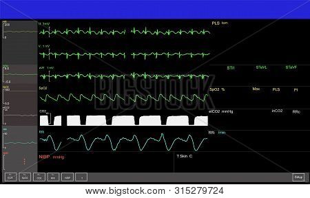 Monitoring Graph Displays Of Patient Vital Signs Of Intensive Care Unit In Hospital.