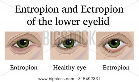 Illustration Of Ophthalmic Diseases Entropion And Ectropion Of The Lower Eyelid