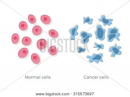 Vector Isolated Illustration Of Cell Structure: Normal And Cancer. Medical Diagram For Poster, Educa