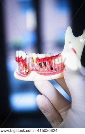 Tooth Decay Dental Model