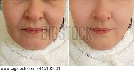 Woman Double Chin Before And After Treatment