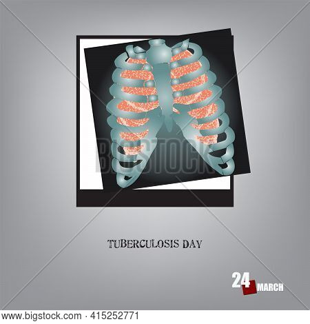 The Calendar Event Is Celebrated In March - Tuberculosis Day