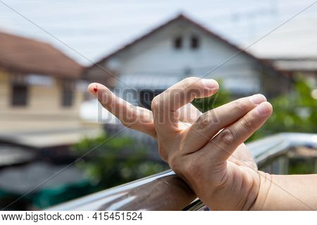 Finger With Drop Of Fresh Blood. A Finger On Right Human Hand Is Cut Hurt And Bleeding With Bright R