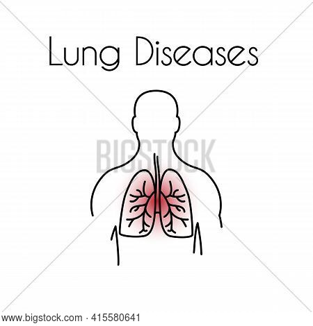 Lung Diseases Linear Icon. Vector Minimal Illustration Of Young Man With Red Lungs Suffers From Ches