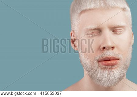 Bearded Albino Man Posing With Closed Eyes Against Turquoise Studio Background, Empty Space. Albinis