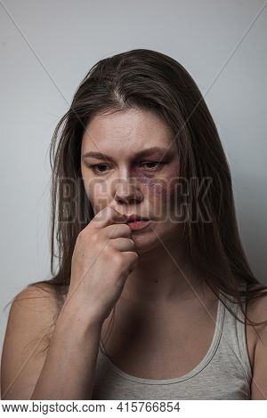 Domestic Violence, Abuse Woman With Bruise On Face