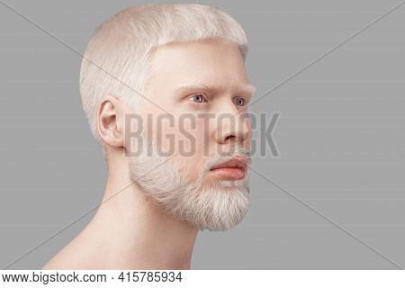 Abnormal Deviations Concept. Albino Man With Pale Skin And White Hair Looking Aside Over Grey Studio