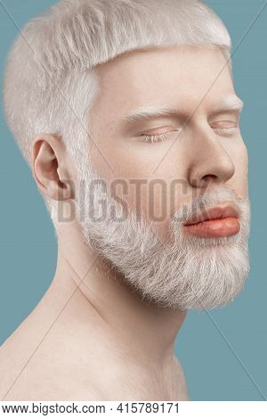 Albinism Concept. Headshot Of Young Albino Man With Closed Eyes, Pale Skin And White Hair Posing On